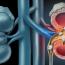 5 dicas para evitar o cálculo urinário