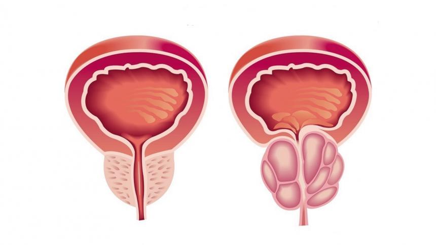 Saiba mais sobre a hiperplasia prostática benigna